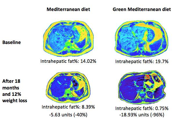 Green med diet cuts non-alcoholic fatty liver disease by half – Ben-Gurion U. study
