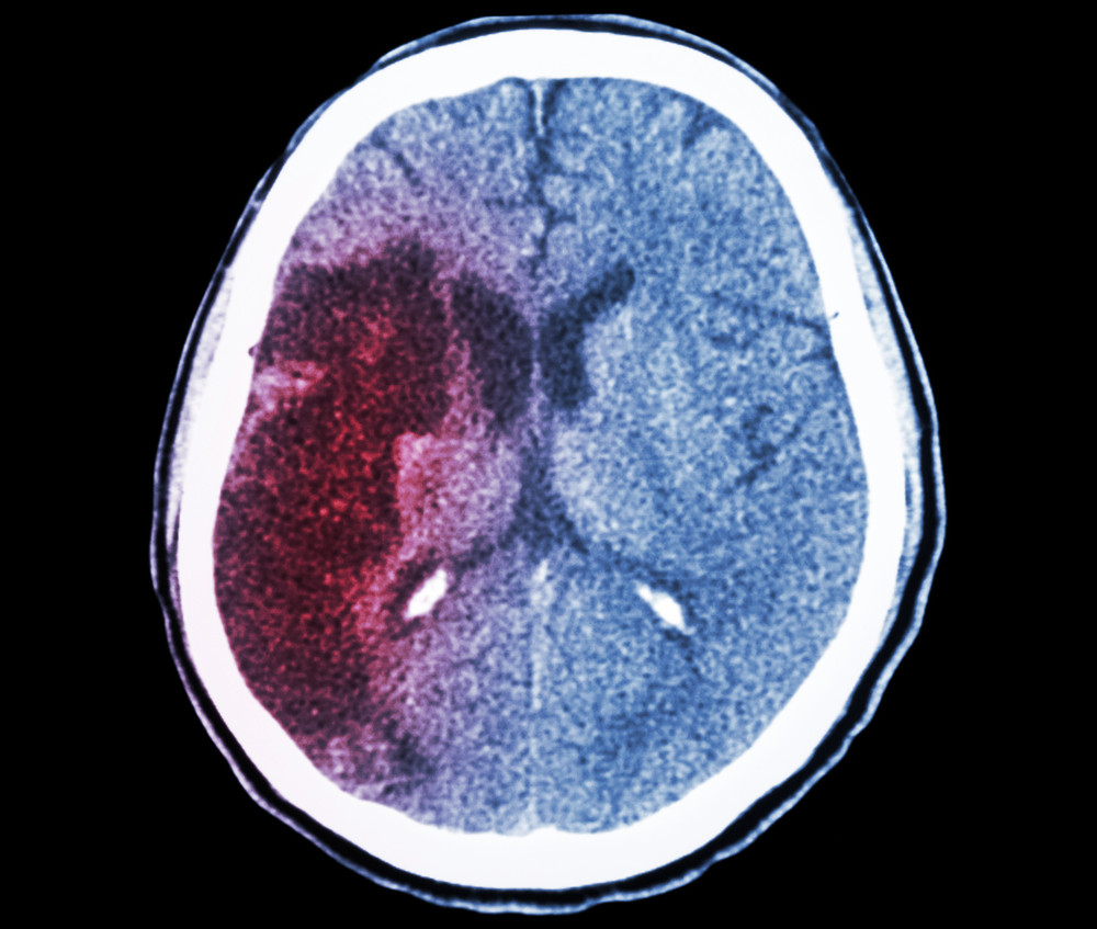 SanBio and Sunovion Recruiting for Phase 2b Trial for Cell Therapy Approach to Ischemic Stroke