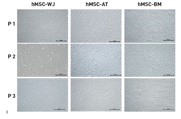 msc nutristem xf | Top 5 Reasons to Use Biological Industries' NutriStem® for Isolation and Growth of hMSCs