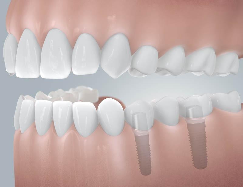 Sorvégi foghiány pótlása implantátummal