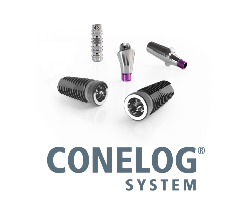 CONELOG implantációs rendszer