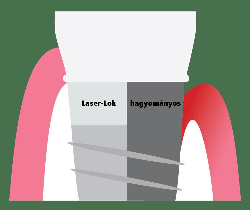 Laser-Lok peri-implantitis