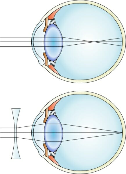 Eyes Anatomy Overview Parts And Functions