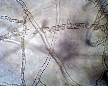 non-septate-hyphae-coenocytic-hyphae