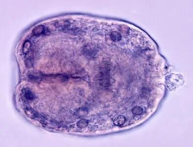 image of Scolex of E. granulosus
