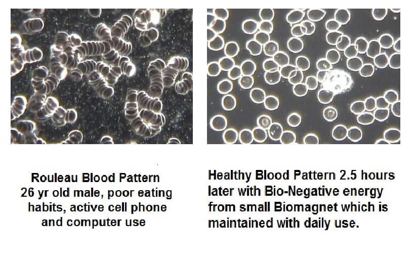 Rouleau blood pattern vs health blood pattern