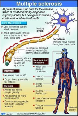 Health-disease-sclerosis-4886