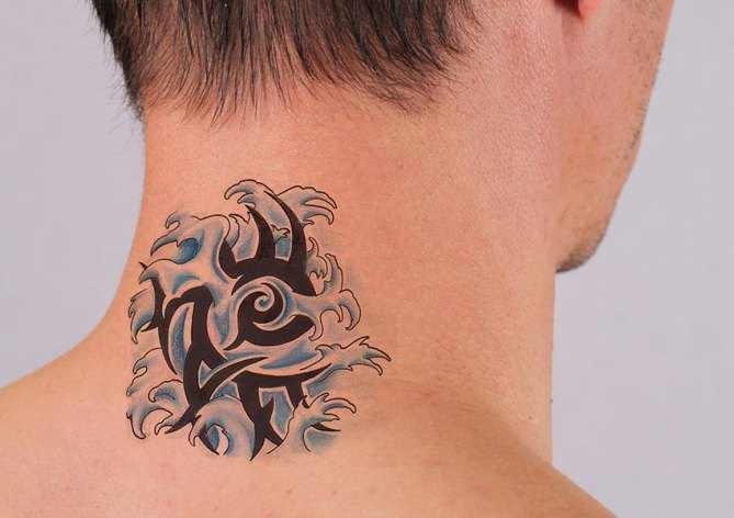Laser Tattoo Removal Dubai