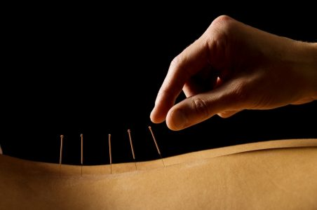 Acupuncture and Phytotherapy
