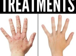 5 Homeopathic Treatments For Eczema That Work