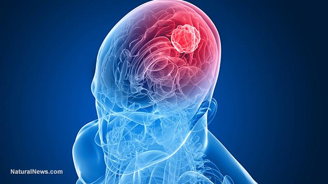 Баща с терминален рак на мозъка унищожава тумора като спира приема на въглехидрати
