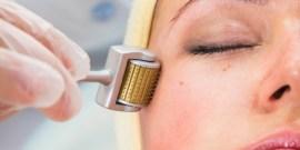 5 Melhores Tratamentos para Remover as Cicatrizes de Acne
