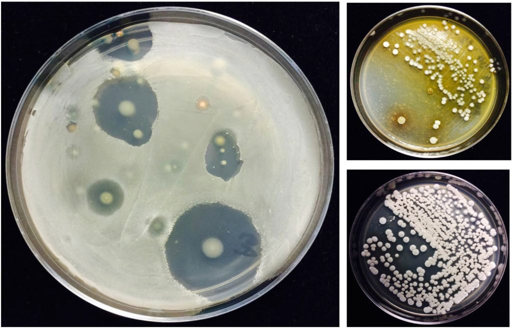 "Streptomyces are diverse soil bacteria known for their prolific production of antibiotics.  Antibiotics can inhibit the growth of diverse plant pathogens in soil.  Each clear area is the ""kill zone"" of an antibiotic-producing Streptomyces colony (which can be seen in the center) against the specified pathogen target, which has been spread over the surface of the growth medium.  Photo credits: Nuttapon Pombubpa and Kinkel Research Group."
