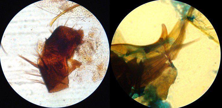 Figure 5. From buccal pellets of Colobopsis sp. 'AR' ('All Red'), insect parts possibly from inquilines: (L) cricket thorax, and (R) cerci and ovipositor? Degradation of pellet material precludes firm identification of insect parts. (Photo D. Davidson)