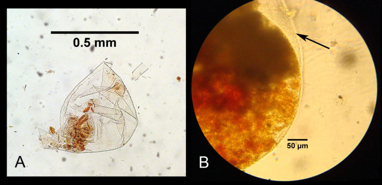 Figure 6. Lining of infrabuccal pocket enveloping shed pellets: A - envelope broken open and separated from most contents (species 'AR'); B - intact envelope (arrow) containing pellet and red MG product (species 'LE', Large Eyes). (Photo D. Davidson)