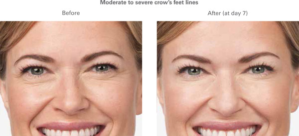 More Botox before and after photo