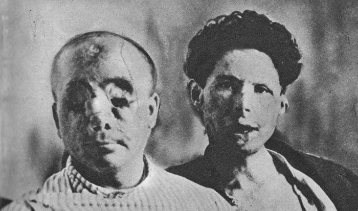 Pioneering plastic surgery, legacy of 1914-18