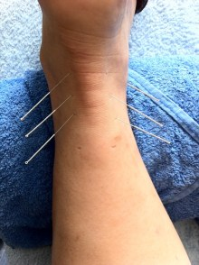 acupuncture-1211182_640
