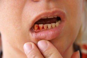 Bleeding gums from periodontal disease