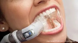 isolite-mouth-shot_no-handpiece