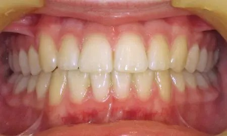 ABC approach orthodontics