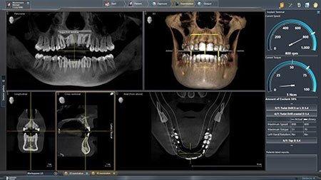 Dentsply Sirona treatment centre