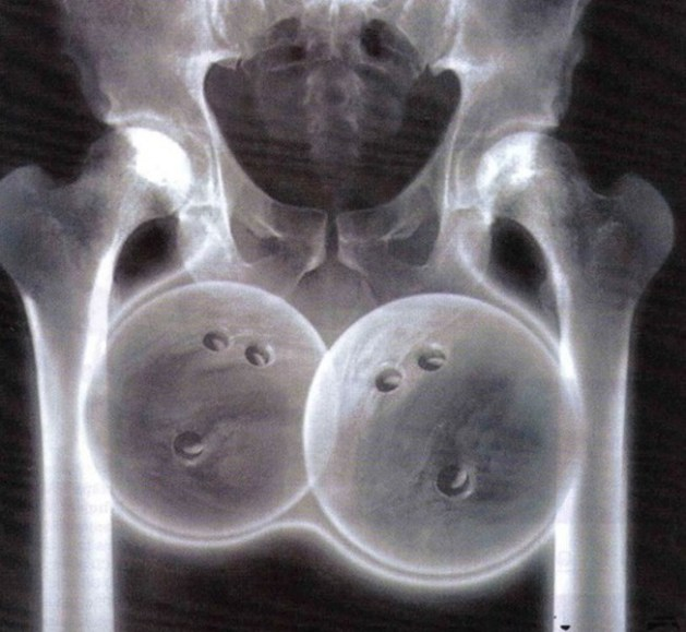 Bowling ball xray