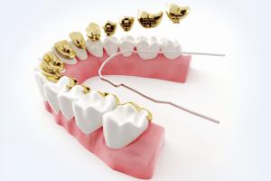 3.最新の歯列矯正について_htm_m49361b12