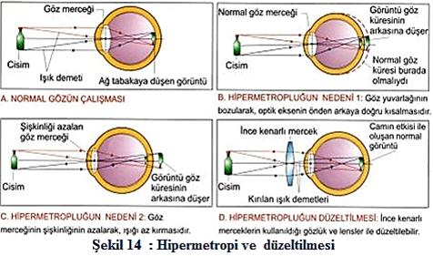 hipermetrop