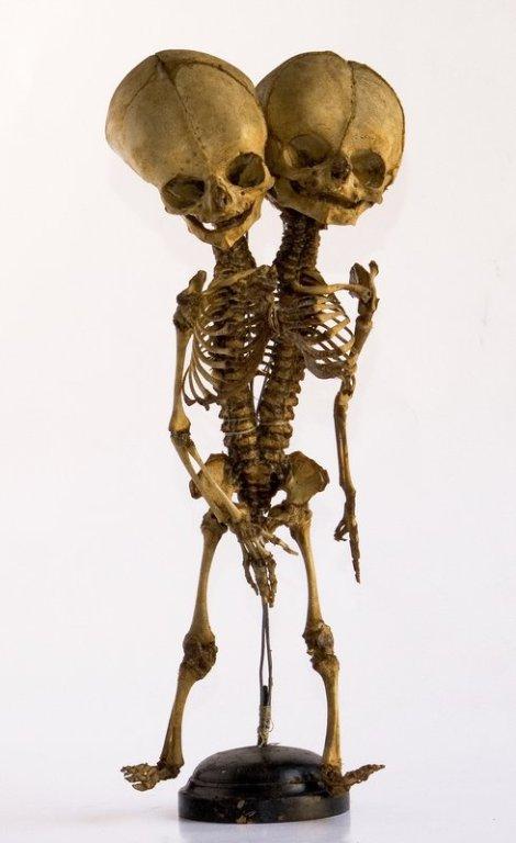 scheletri2
