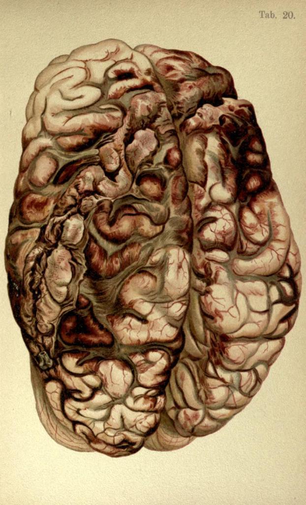 Ferita circolare da pistola (il proiettile è stato deviato dalla calotta cranica, girando attorno al cervello).