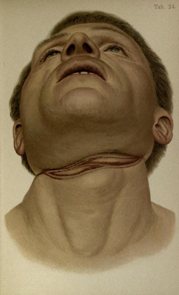 Suicidio per impiccagione con vecchia corda arrotolata per cinque volte attorno al collo.