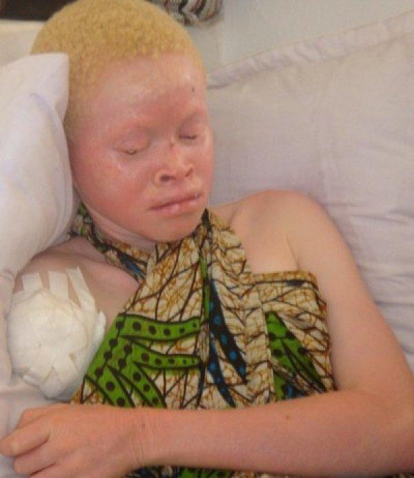 rsz_albino_kabula_courtesygisela_stiles