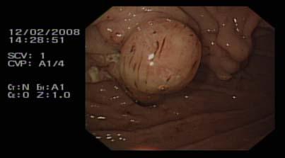 Blocked percutaneous endoscopic gastrostomy tube an