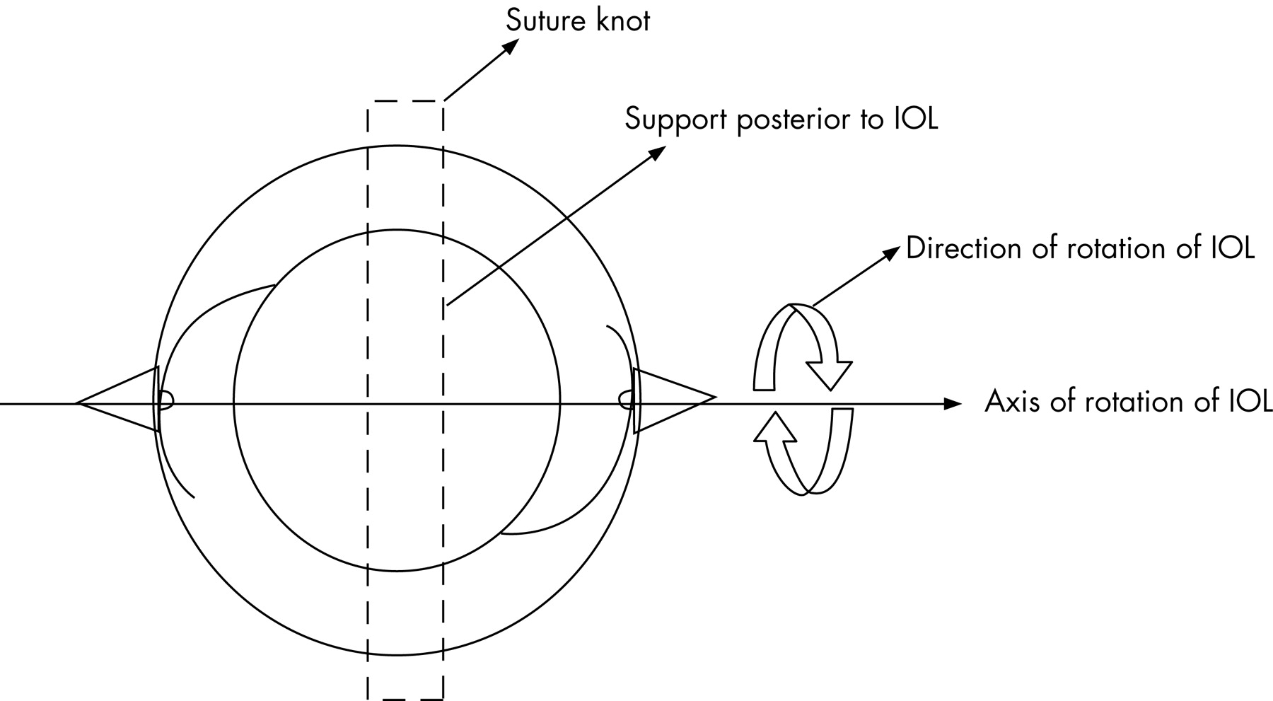 Management Of Intraoperative Tilting Of The Scleral