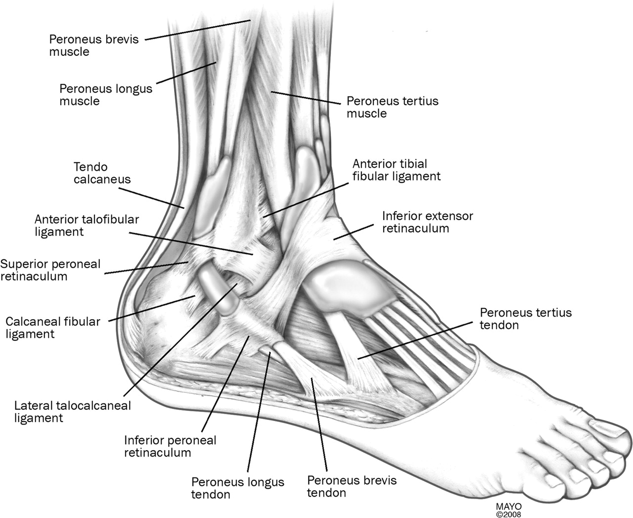 Peroneal tendon subluxation: the other lateral ankle injury | British Journal of Sports Medicine