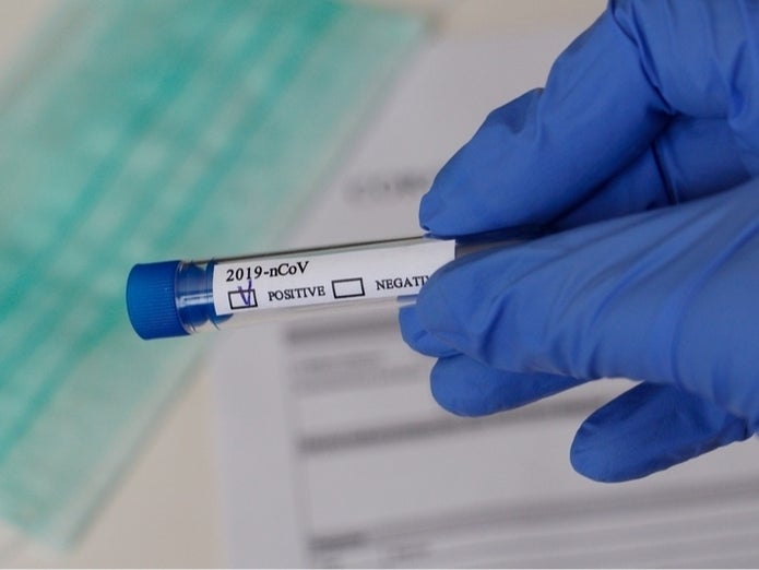 Mobile Coronavirus Testing Available At Bed-Stuy's Marcy Houses