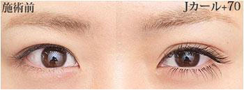 eyelashJ