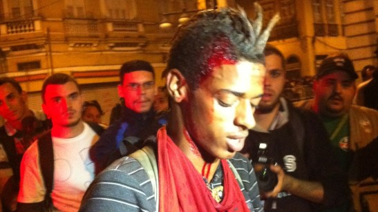 19-year old Igor Andrade after being pelted during the protest in Rio de Janeiro