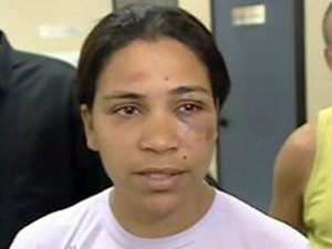 Sirlei Dias was attacked by five youths in 2007 in Rio de Janeiro
