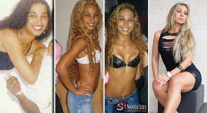 valesca-before-and-after