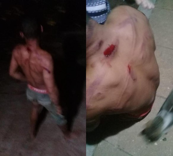 In the State of Paraíba: 22 Year Old Man Whipped and Tortured