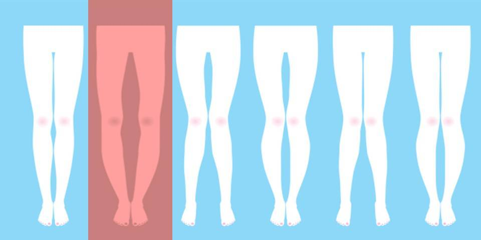 Understanding Bowed Legs in Children and Adults