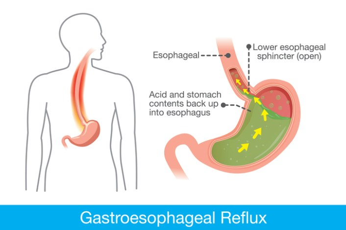 9 Natural Remedies To Get Rid Of Acid Reflux…Fast! | BlackDoctor