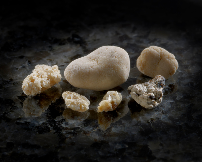 5 Natural Remedies To Prevent & Dissolve Kidney Stones