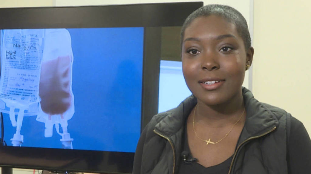 Cured! First Adult Canadian Woman Cured of Sickle Cell!