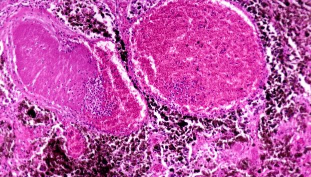 A microscopic image of melanoma