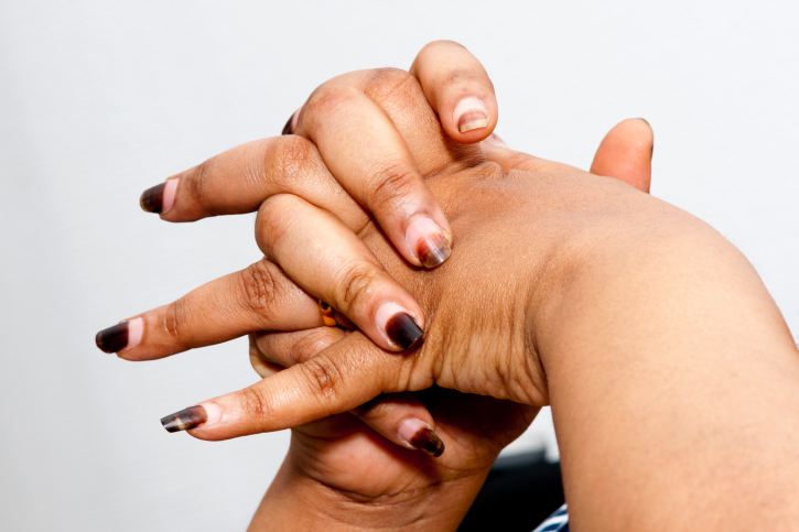 Nail Health Problems | BlackDoctor