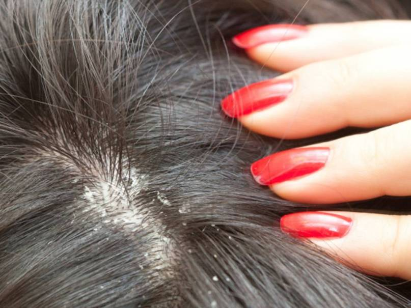 can scalp psoriasis cause hair loss