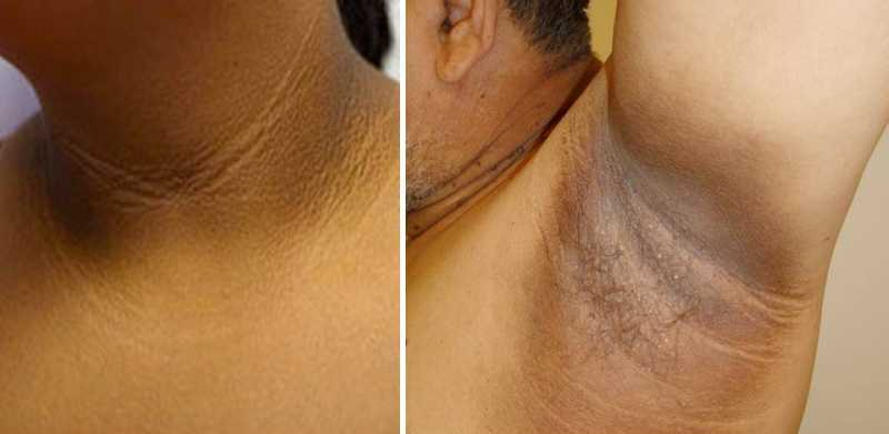 Acanthosis Nigricans Treatment Blackdoctor